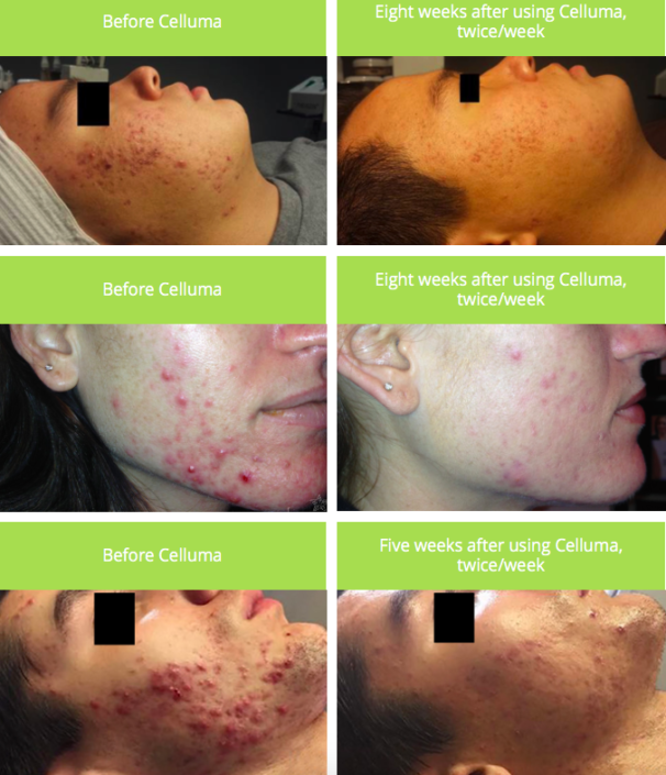 Celluma before and after pics